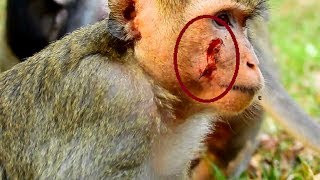 Poor April injure on face ! She protect her baby from forest monkey, Behind scene