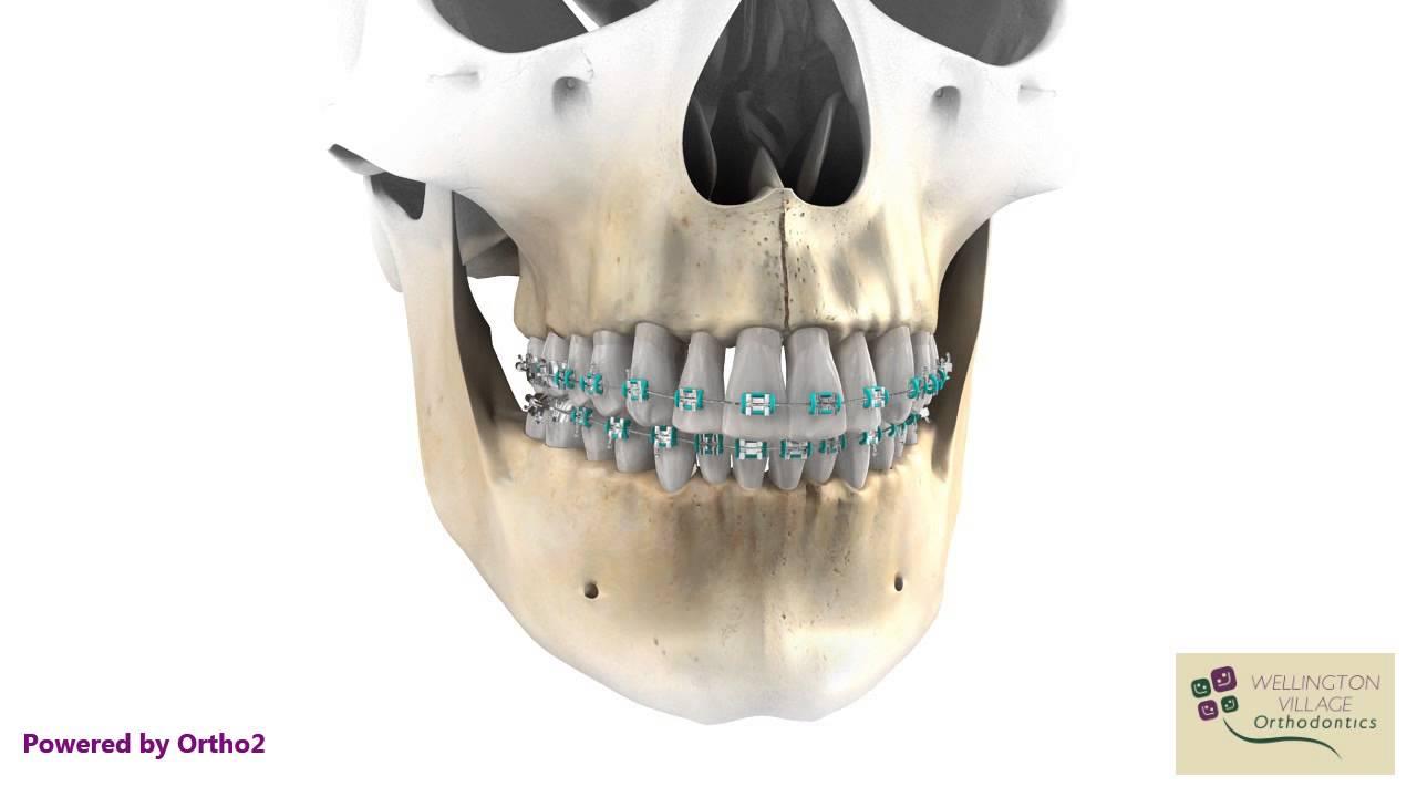 Magnificent Mouth Wired Shut Crest - Wiring Schematics and Diagrams ...