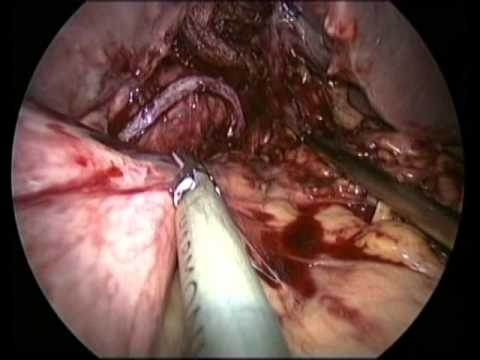 Laparoscopic conversion of Roux en y gastric bypass to sleeve gastrectomy