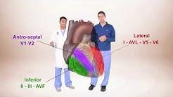 ECG for Beginners. ECG Diagnosis of ST Elevation Myocardial Infarction (STEMI)