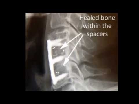 Understanding Anterior Cervical Discectomy and Fusion.