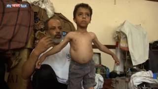 عائلة يمنية بين سياط التشرد وسطوة المرض