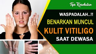 TRIBUN-VIDEO.COM - Vitiligo adalah penyakit yang terjadi ketika sel kulit yang memproduksi melanin (.