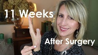 BASAL JOINT ARTHRITIS SURGERY -  11 WEEKS AFTER SURGERY Video