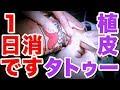 1日で消す『タトゥー 切除法&皮膚移植〜前編〜』[  japanese tattoo] [  東京] [  日本] [  irezumi]