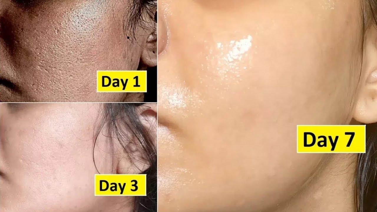 إصلاح الجلد    أغلق المنافذ المفتوحة الكبيرة في أسبوع واحد ، قم بإزالة البقع الداكنة ، تبييض البشرة