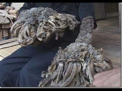 Human ' Treeman ' The Latest Pictures
