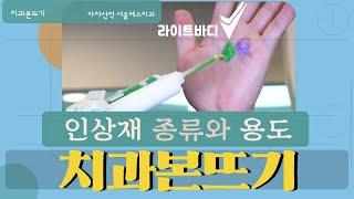 치과 치아본뜨기 본뜨는 방법 / 인상재의 종류 및 용도