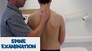 Spine Examination - OSCE Guide