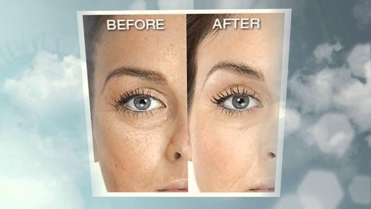 Revitol Eye Cream Reviews Does Revitol Eye Cream Really Work