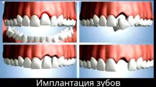 Имплантация зубов в Санкт-Петербурге