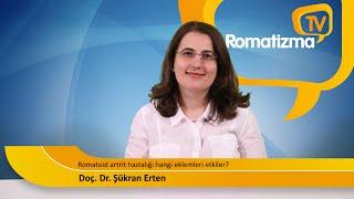 Romatoid artrit hastalığı hangi eklemleri etkiler?