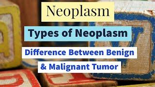 Neoplasm | Benign Neoplasm | Malignant Neoplasm | Difference of Benign and Malignant Tumor