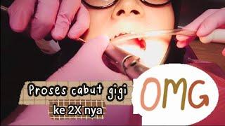 Proses Pencabutan Gigi Geraham Bungsu (Geraham Ujung) | Dokter Gigi Tri Putra.