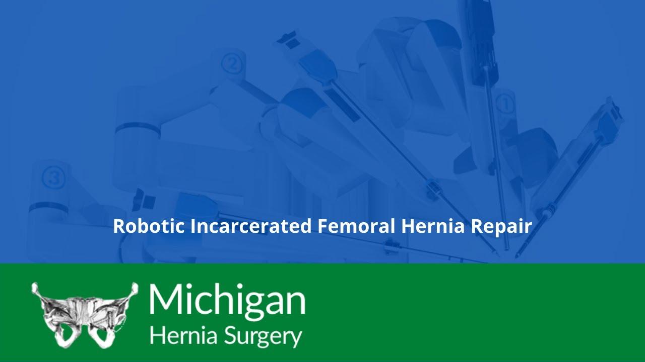 sheridan-porno-hernia-repair