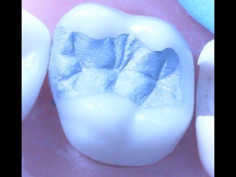 Amalgam Restoration 1