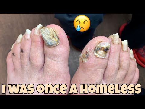 **EXTREMELY LONG TOENAILS TRIMMING** (HE WAS HOMELESS NOT SO LONG AGO)