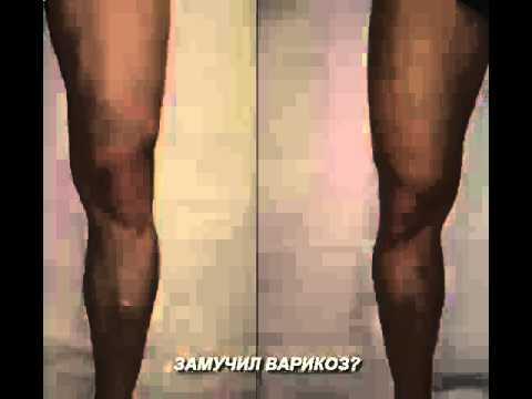 варикозное расширение вен ног лечение
