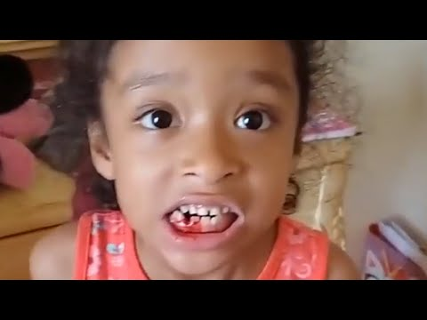 Little girl does exercise routine to pull loose tooth