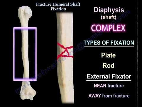 plate osteosynthesis nonunion