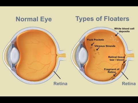what causes floaters in your eyes – Anexa Beauty