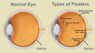Eye Floaters : What is Eye Floaters, Symptoms and Treatment For Eye Floaters