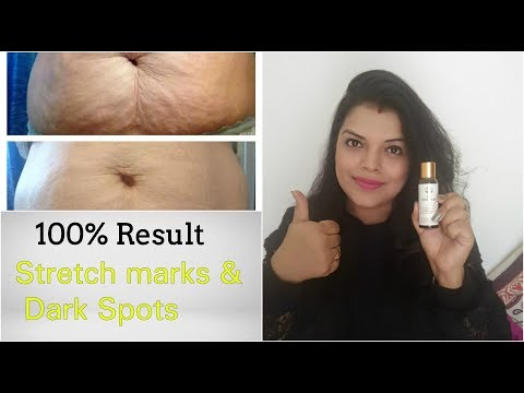 स्ट्रेच मार्क्स - GET 100% RID of STRETCH MARKS & DARK SPOTS - PAVITRA SKINCARE BIO OIL