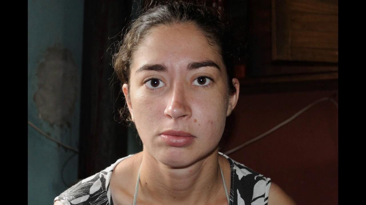 que es la celulitis infecciosa facial