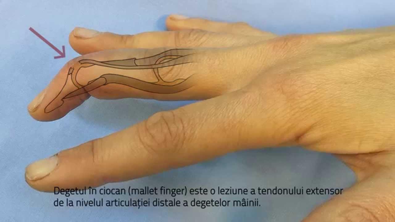 umflarea articulației degetului pe braț