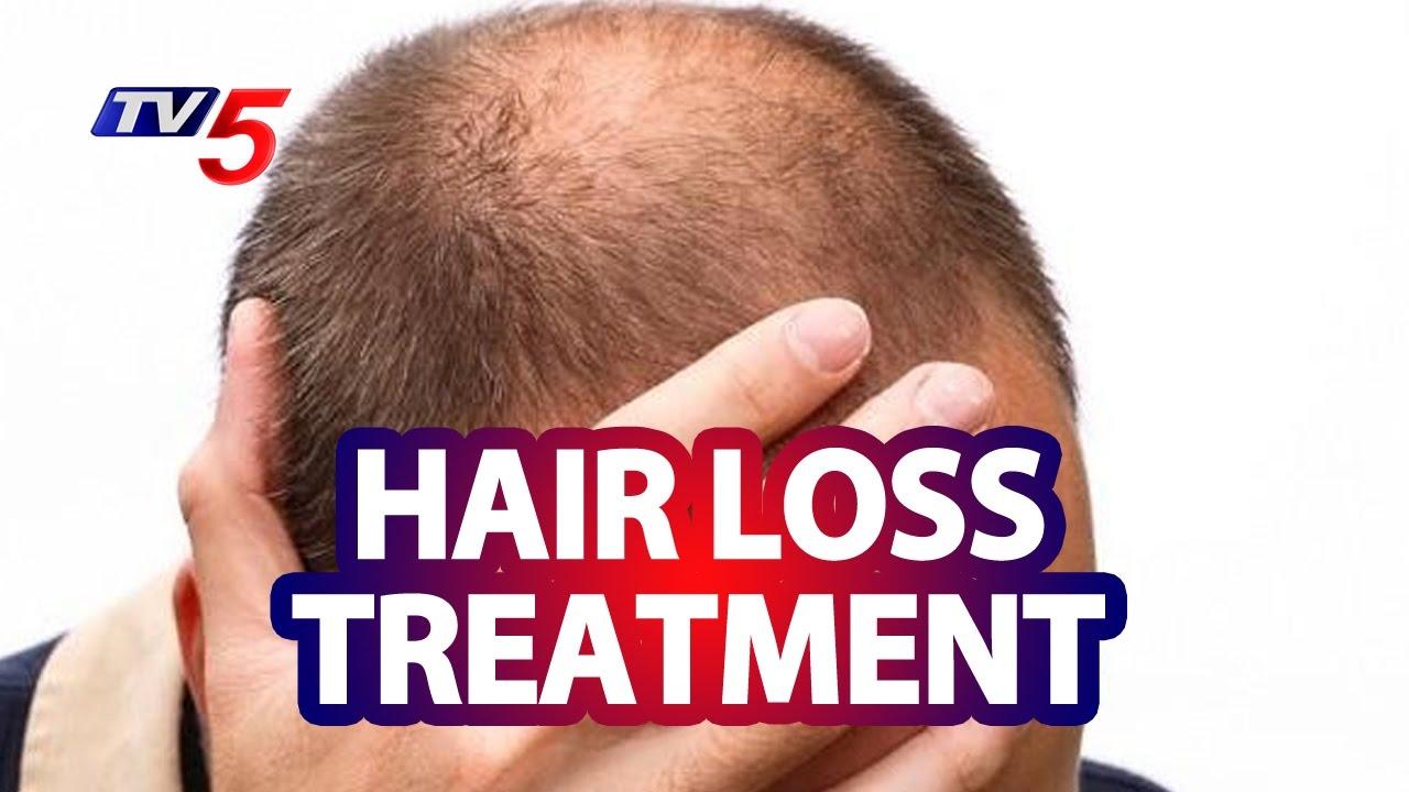 Hair Loss with Androgenetic Alopecia Treatment