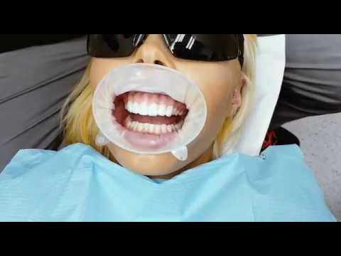 Dental Veneers | Sydney Dental Veneer (02) 8090 1105
