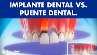 Puente dental fijo sobre diente natural - Comparativa con implantes ©
