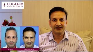 Rahul Raichand shares his amazing hair transplant experience with Eugenix