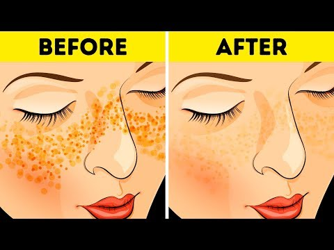 How to Get Rid of Acne Scars In Just 3 Days