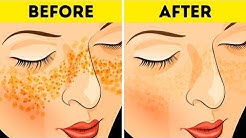 hqdefault - How To Get Rid Of Pimples In Just 3 Days