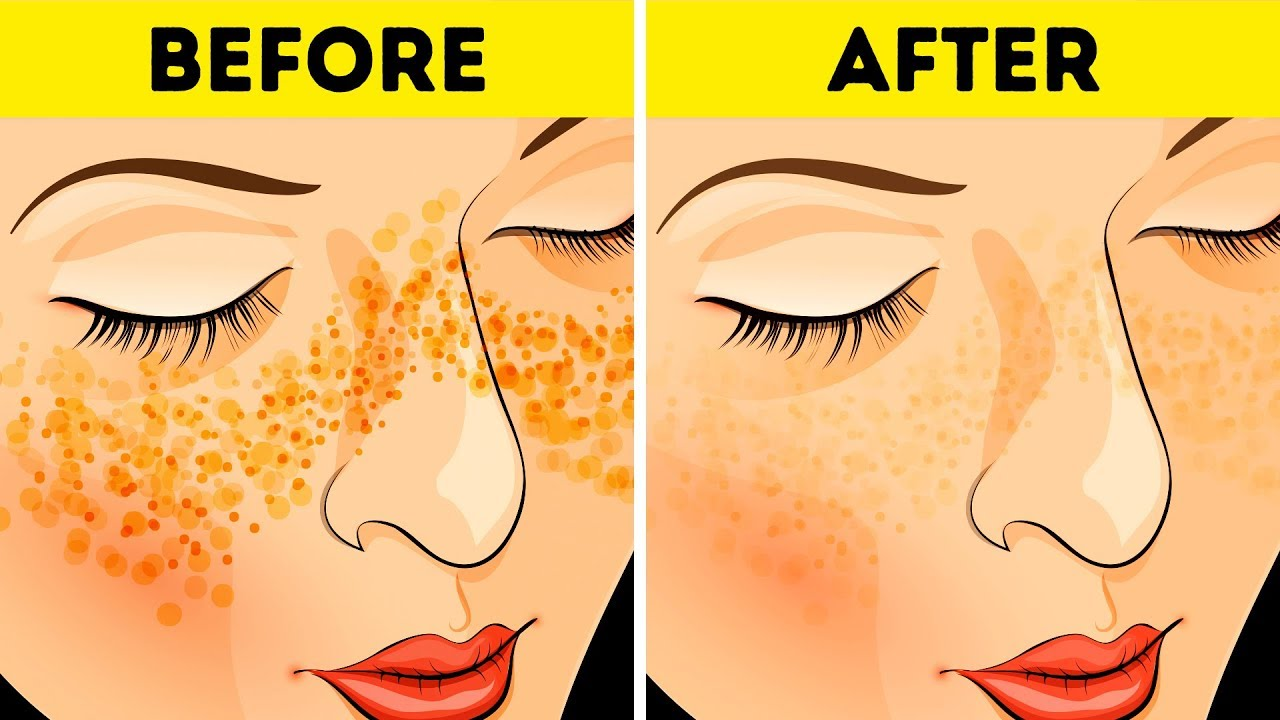 How To Get Rid Of Acne Scars In Just 3 Days Youtube