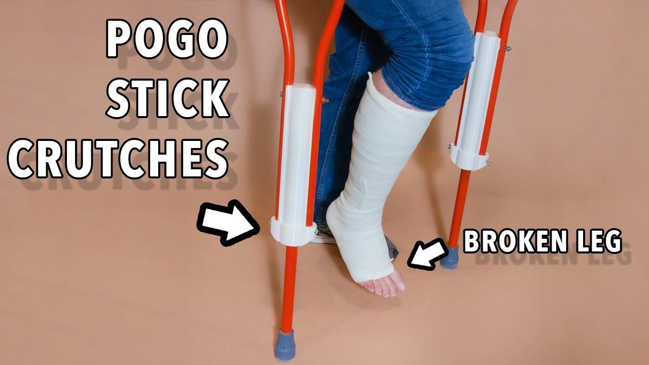 lets make having a broken leg WAY more extreme