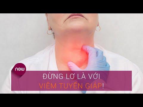 Đừng lơ là với viêm tuyến giáp! | VTC Now