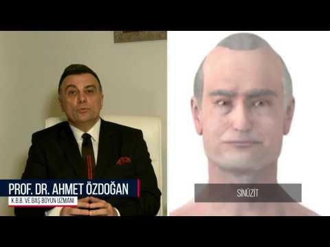 Sinuzit Prof Dr Ahmet Ozdogan Youtube