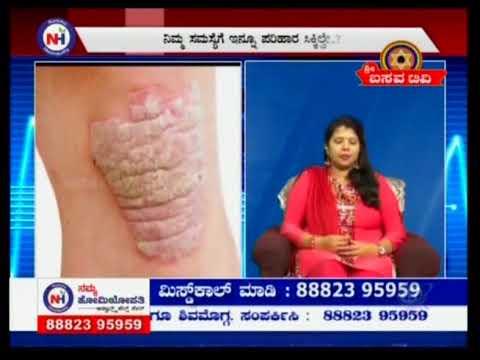 Namma Homeopathy Dr Parvathi Skin Problem