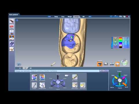Chairside Chat - Occlusion Vs Restoration Thickness