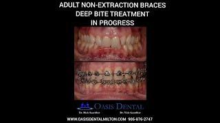 Adult Non-Extraction Braces | Deep Bite & TMJ Disorder Treatment | ALF Orthodontics