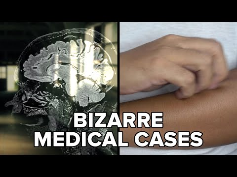 Bizarre Medical Cases That Still Confuse Doctors