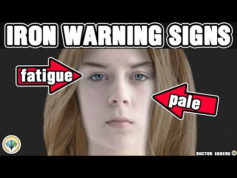 Top 10 Signs You Have An Iron Deficiency