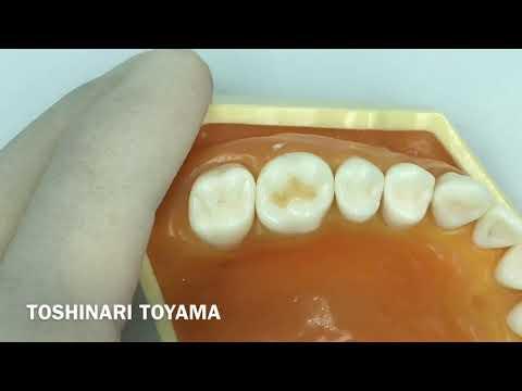 Tokuyama Dental GDS Flowableart for Composite Resin トクヤマデンタルGDSフロワブルアート(コンポジットレジン用インスツルメント)