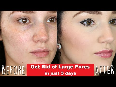 how-to-get-rid-of-large-pores-in-3-days---soft,-shining,-smooth-and-tightens-skin---health-is-wealth