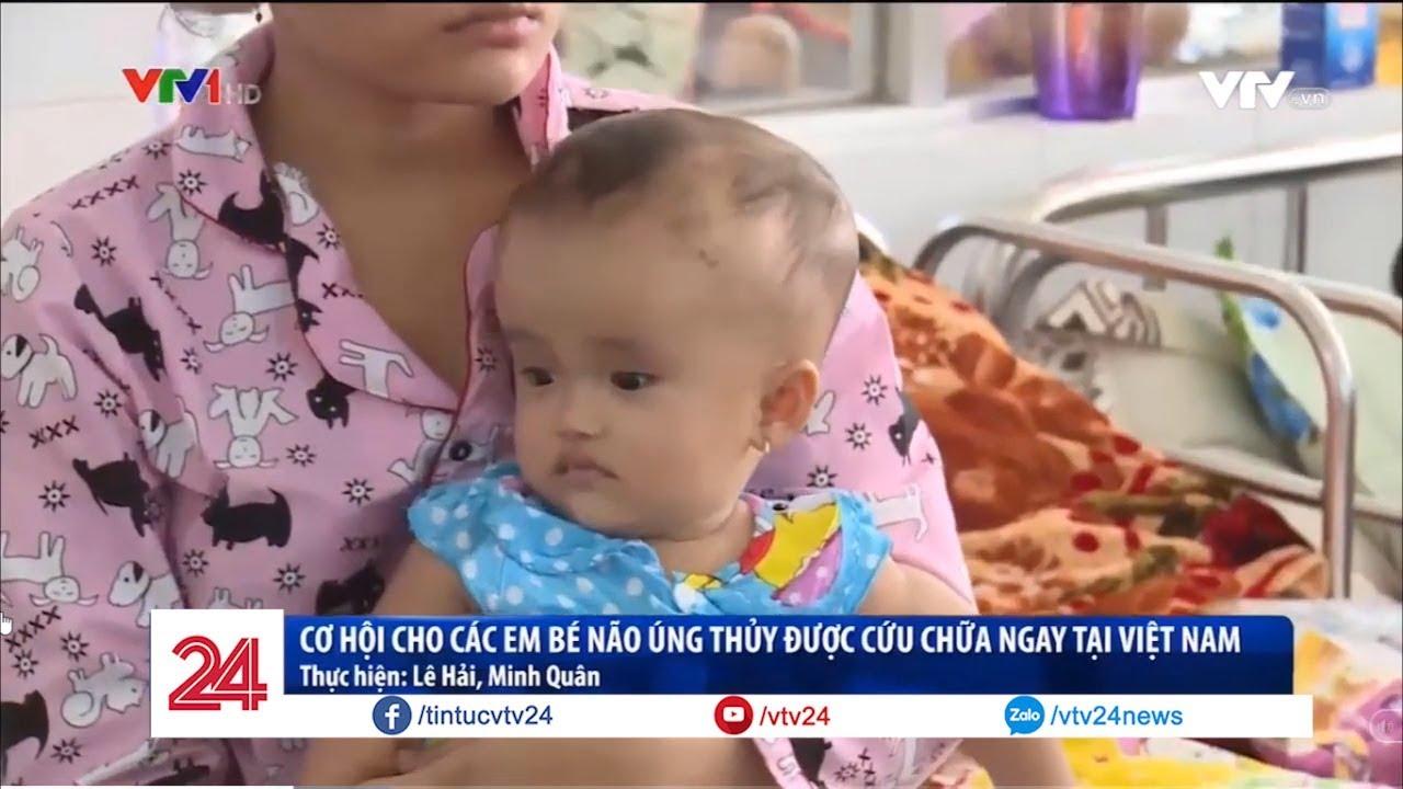 Cơ hội cho các em bé não úng thủy được cứu chữa ngay tại Việt Nam | VTV24