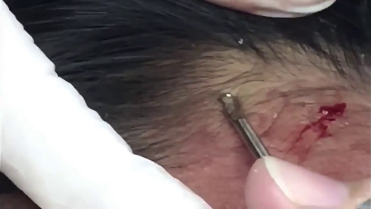 medium resolution of the big blackhead removal how to remove blackheads by using 21 acne cyst diagram solar comedone diagram