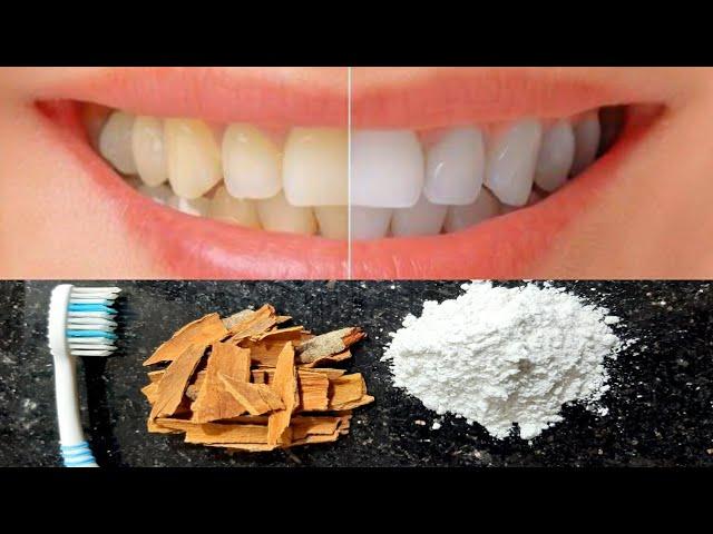 गंदे पीले दाँतो 5 मिनट में मोतियों जैसा सफेद चमकदार बनाए मुँह की दुर्गन्ध खत्म करे | teeth whitening