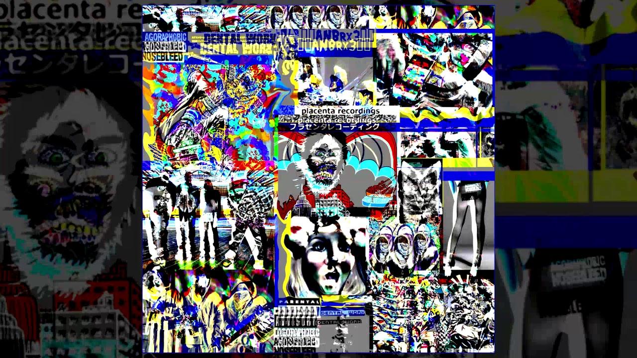 Agoraphobic Nosebleed vs Dental Work - ANbRX Pharmaceuticals 3 FULL ALBUM  (2017 - Breakcore/Noise)